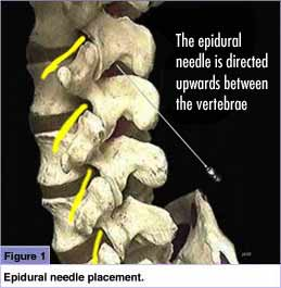Epidural Placement