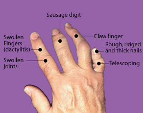 Fingers or toes may become so swollen that they look like sausages.