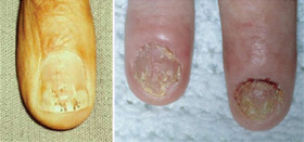 Nails may become pitted (small holes), separated from the nail bed, or ridged and cracked.