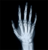 Radiographie d'une main humaine.