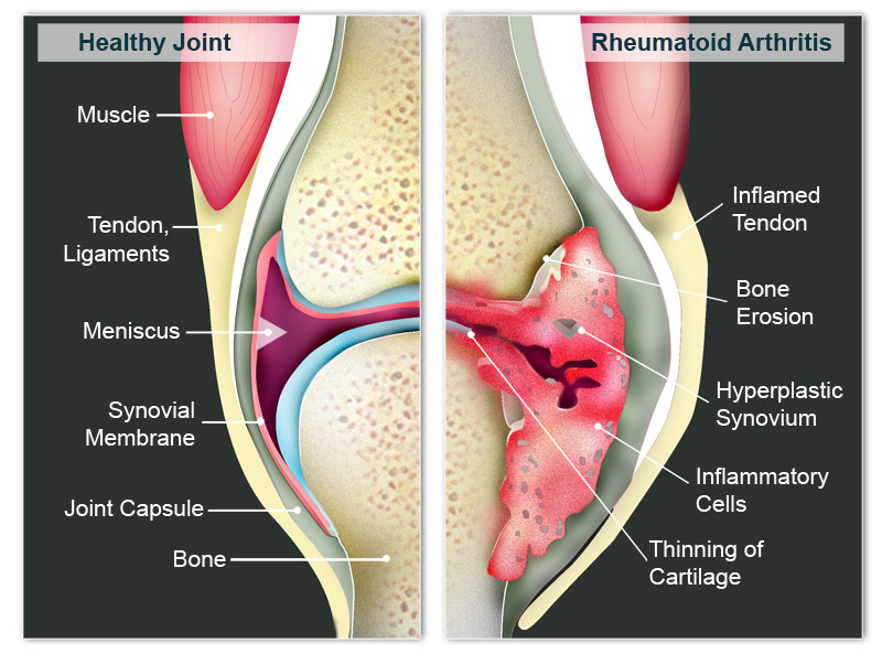 Lipsa tratamentului cu aer ?i osteocondroza