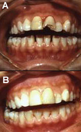 Composite repair of the front teeth