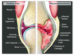 healthy joint vs. joint with rheumatoid arthritis